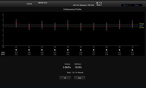 Hs70A ultrasound image