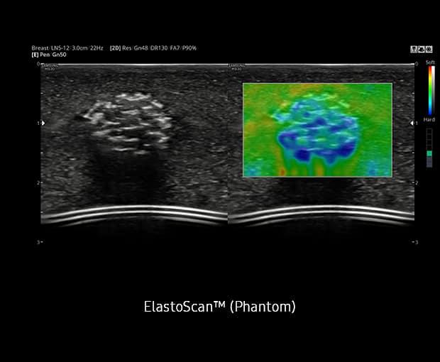 Elastoscan (Phantom)